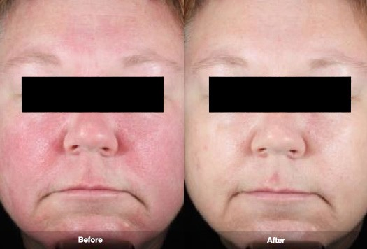 Laser Treatment For Rosacea Richmond Hill Cosmetic Clinic