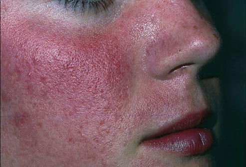 Facial and face massage